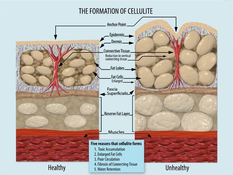 ways-to-get-rid-of-cellulite